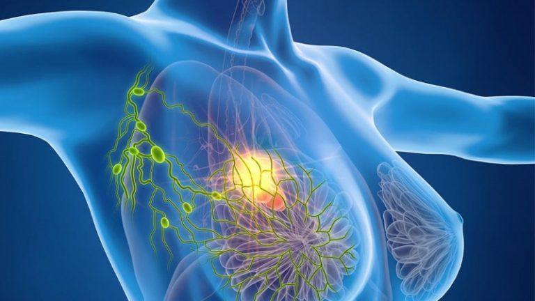 Ученые сумели полностью победить рак молочной железы